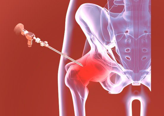 Treatment of Hip by Christopher J. Utz, M.D.